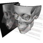 CBCT and Digital Orthodontics (ENG + FR + NL)